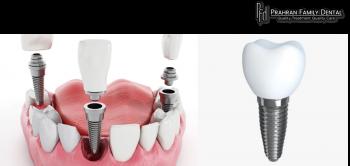 Best Teeth Implant dentistry treatment   Prahran Family Dental