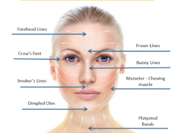 Anti-Wrinkle Injection is available at Box Hill Superclinic