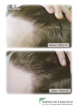 Hair Loss & Alopecia Areata Treatment Melbourne   Natural Hair Regrowth