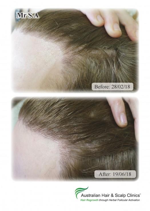 Hair Loss &  ...
