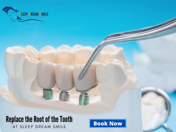 Affordable, Permanent and Predictable Teeth Replacement Solution in Melbourne