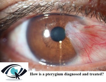 Eye Specialist Adelaide - How Does Pterygia Impact On Your Vision