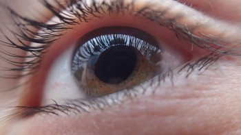 Does What You Eat Impact On Cataracts Know With Adelaide Eye Surgeons