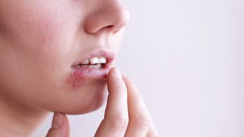 Ayurveda Genital Herpes HSV Treatment