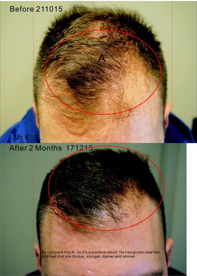 Hair Treatment S ...