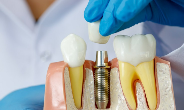 Dental Implant S ...