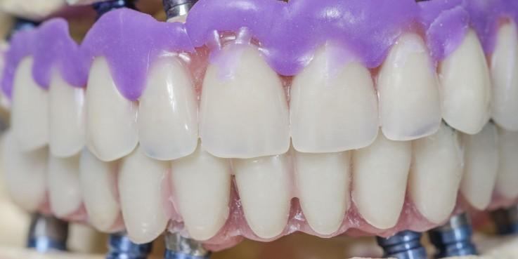 Implant dentistr ...