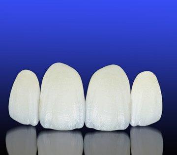 Porcelain Veneers Melbourne | Prahran Family Dental