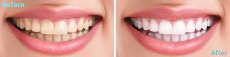 Teeth Whitening  ...