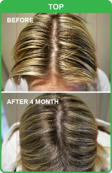 Looking for Hair Loss Treatment in Canberra?